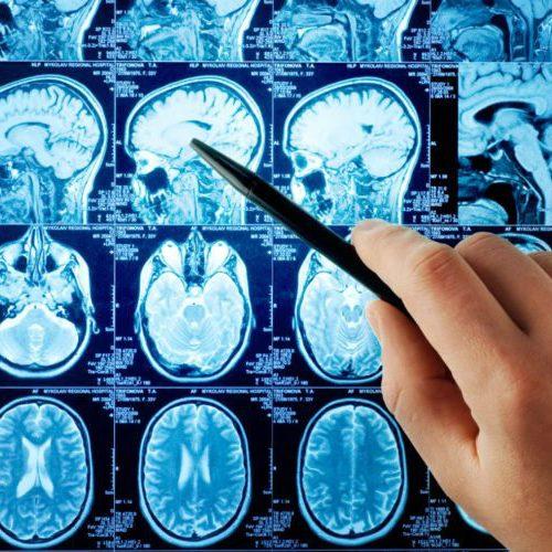 Nevroloji